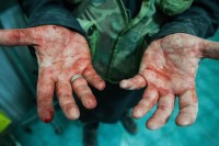 The hands of a rebel soldier after carrying a wounded girl to a hospital, Aleppo, Syria, May 27, 2013