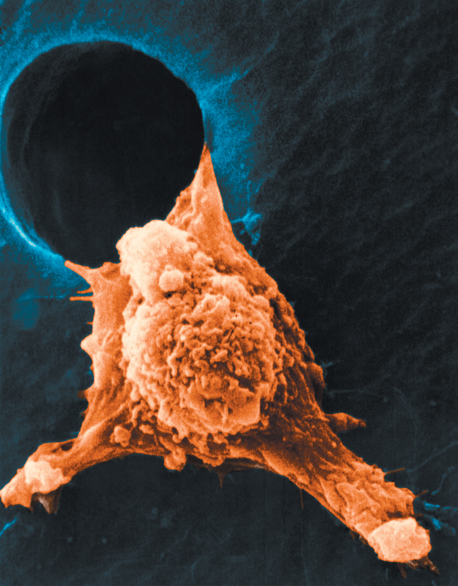 A color-enhanced scanning electron micrograph showing the spread of cancer cells