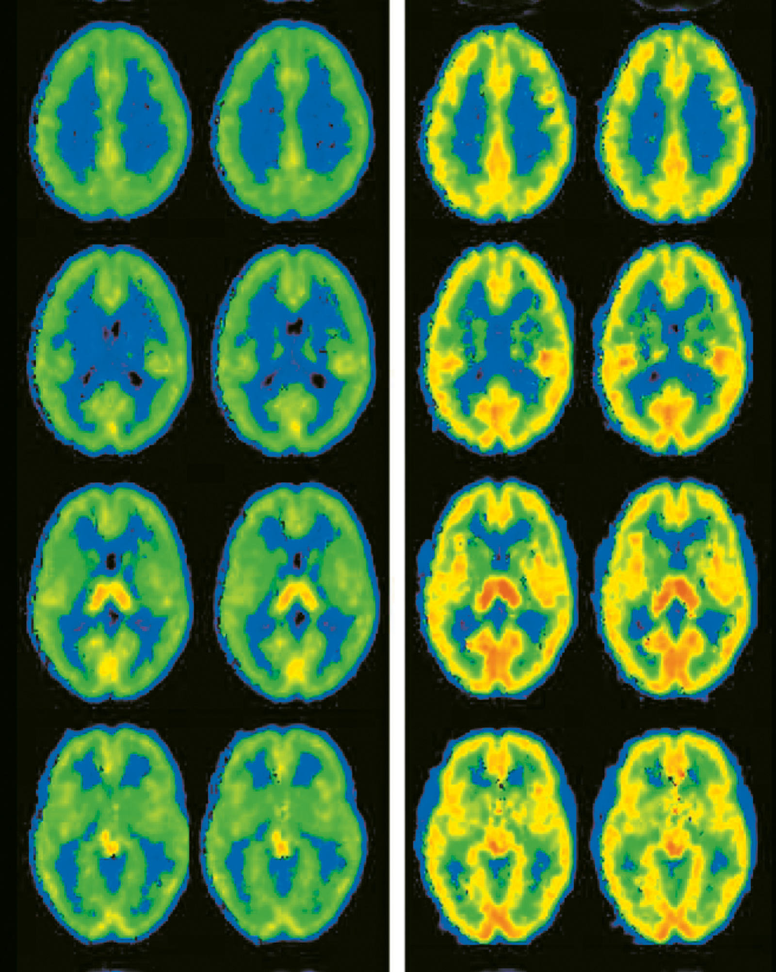 Brain activity in 'aggressive and nonaggressive participants'; from a 2008 study of trait aggression as a predictor of future violence, published in The Journal of Neuroscience