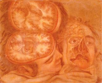Jacques Fabien Gautier-Dagoty: Anatomy of the Brain, eighteenth century