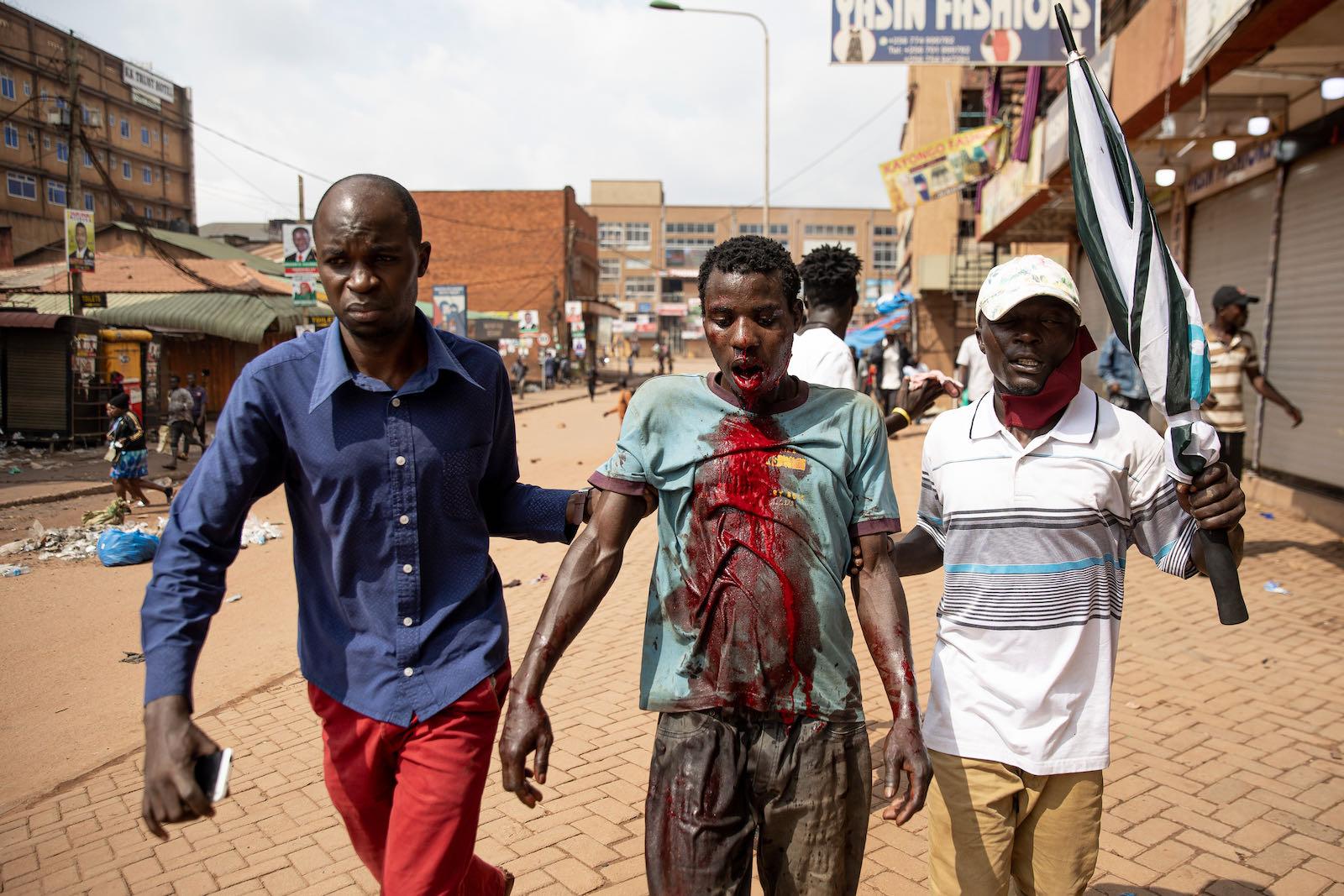 An injured protester in Uganda