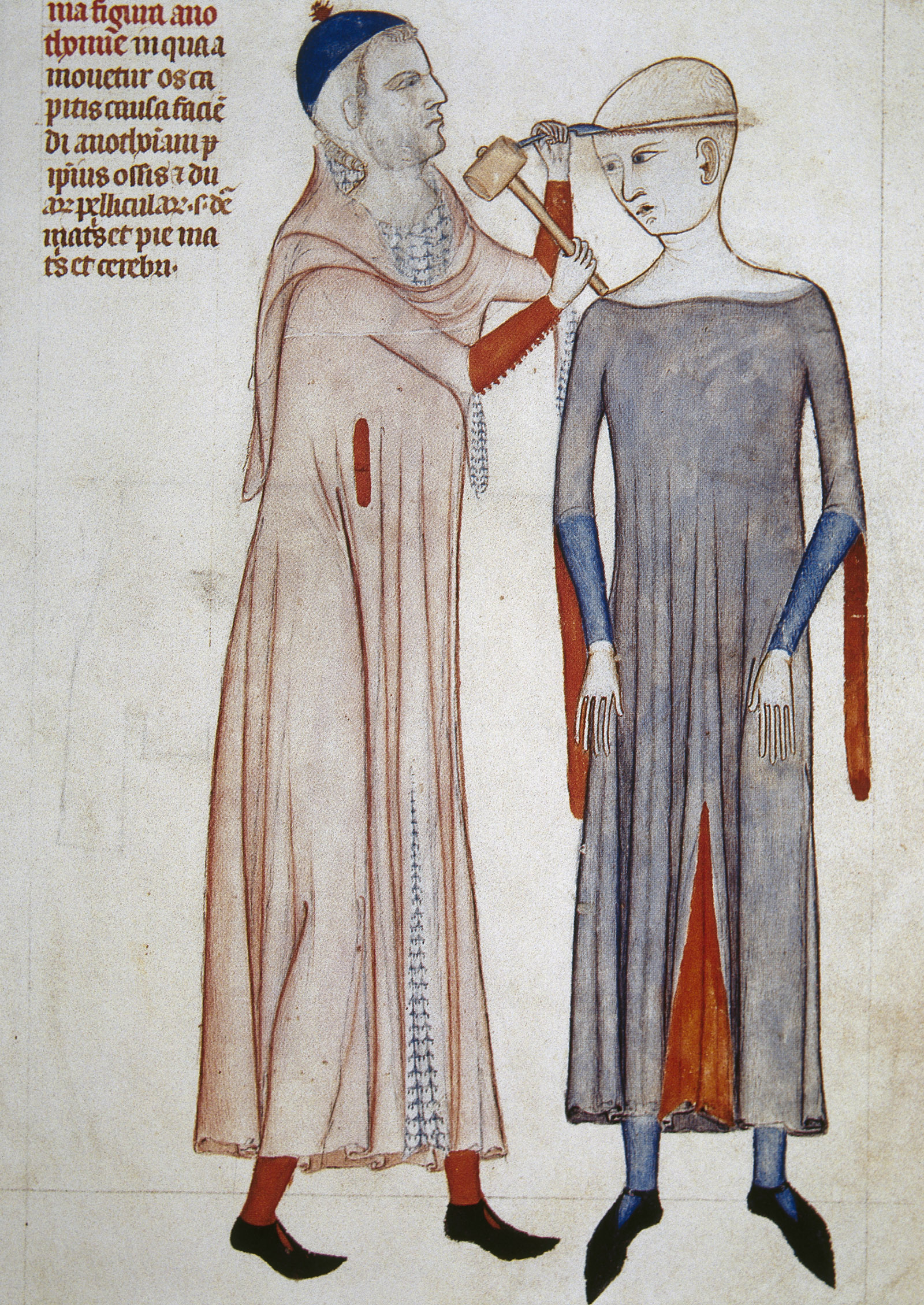 Illustration of trepanning from an anatomical treatise by the Italian physician Guido da Vigevano, 1345